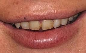 dental-works