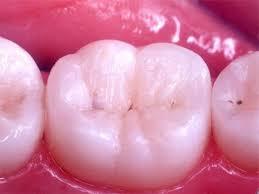 dental-filling-materials