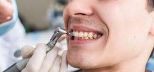 dental beograd